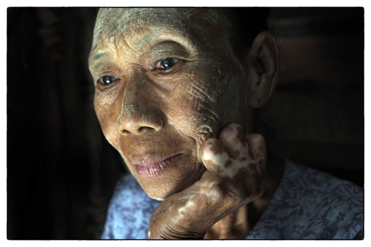 Taken as part of on-going project concerning Leprosy in the Modern World. Pictured here is an elderly lady living in a rural village within Upper Myanmar, formerly known as Burma.